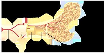 NIR Osteoarthritis Figure 1