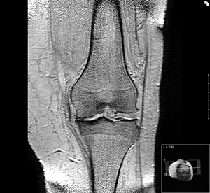 NIR Osteoarthritis Figure 2